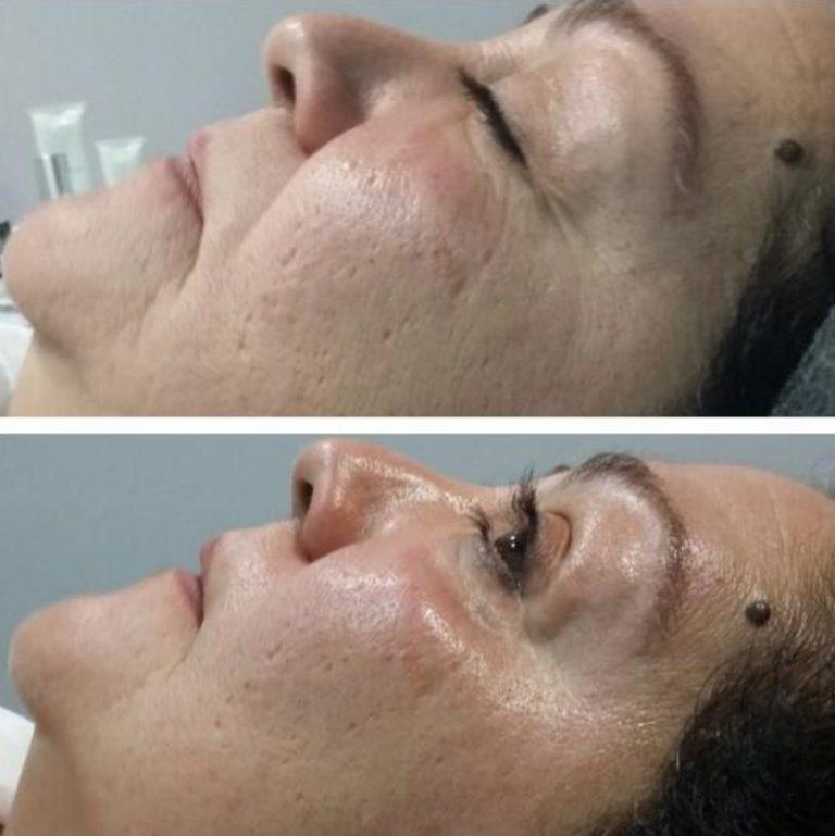 oxigenoterapia talavera