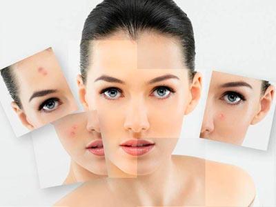 tratamientos acné y grasa en Talavera